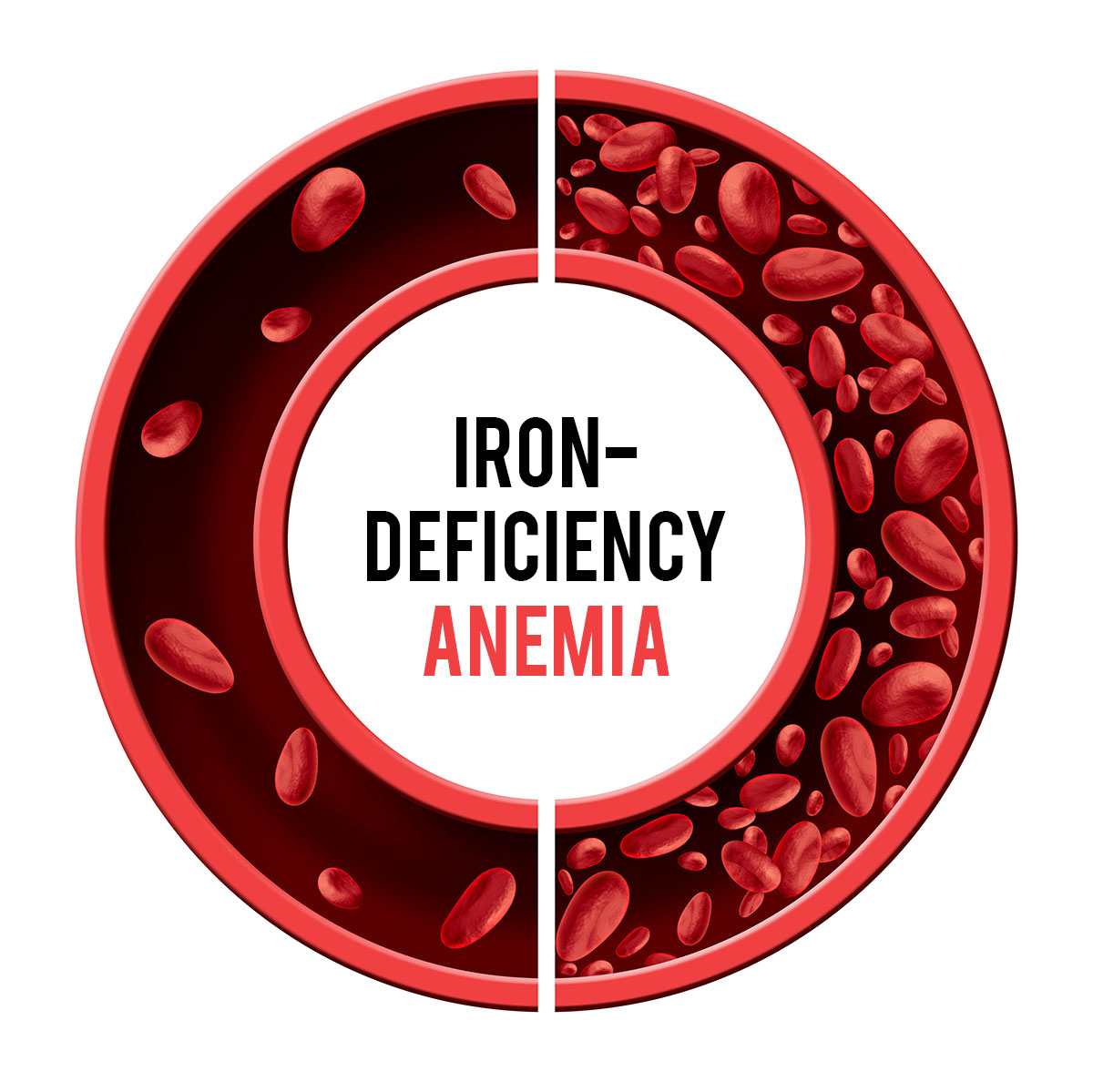 लोह कमतरते तून होणारा पंडुरोग / रक्तक्षय (Iron Deficiency Anaemia)